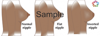 Nipple Shapes Sample
